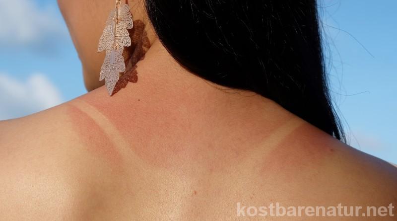 Verbrannte Haut gibt es manchmal schneller als man denkt. Diese Wildpflanzen helfen deiner Haut bei der Kühlung und Regenerierung!