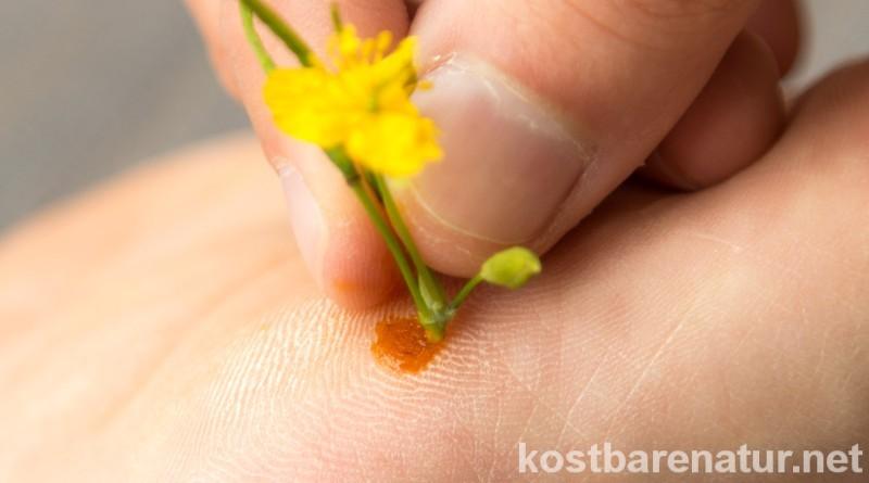 Der gelbe Saft des Schöllkrauts wird schon seit lange als natürliches Mittel gegen Warzen verwendet. So wird es angewandt.